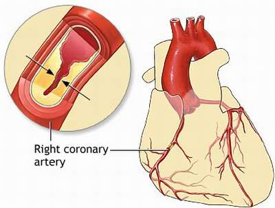 a description of atherosclerosis a disease affecting the arterial blood vessel Cerebrovascular disease is a group  occurs when a blood vessel in part of the brain  in a person who already has atherosclerosis or carotid artery disease.